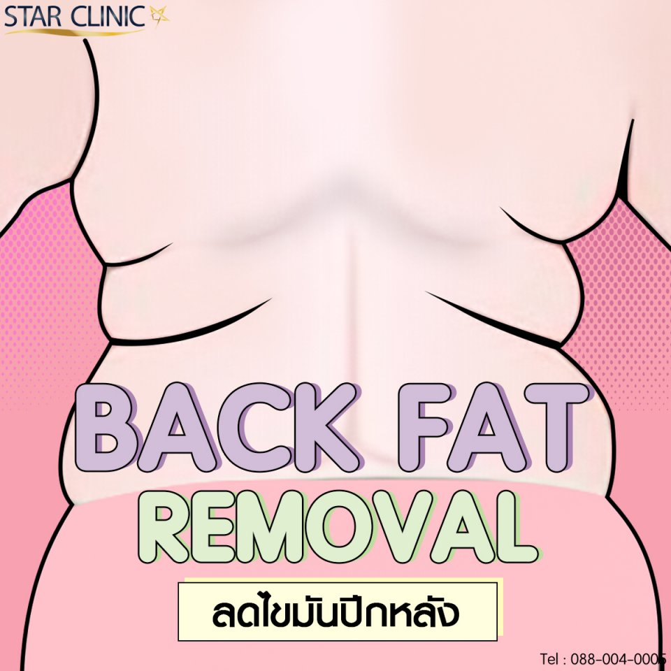 Back Fat Removal