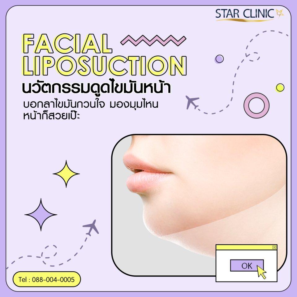 Facial Liposuction