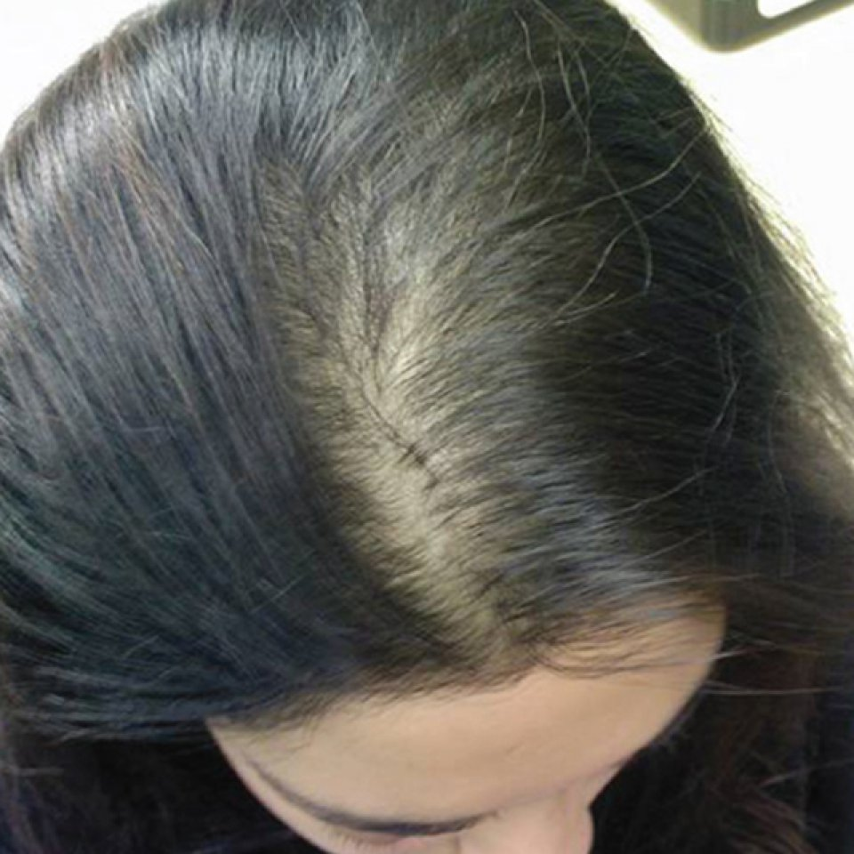Laser Meso Hair