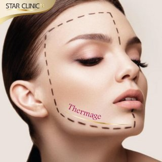 Thermage-เทอร์มาจ