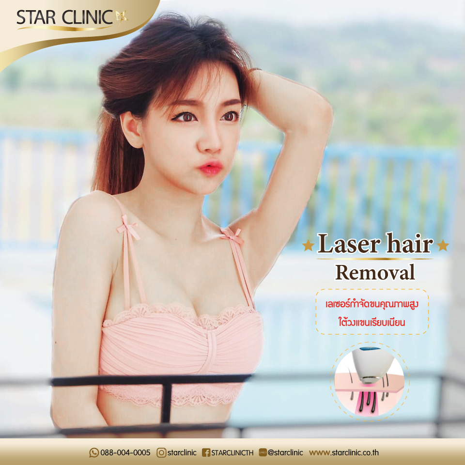 Laser Hair Removal 4