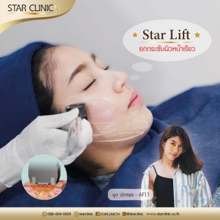 Star Lift Review